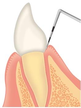 歯周病は慢性疾患、生活習慣病です!まずは診査・診断を!
